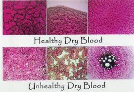 healthy and unhealthy blood